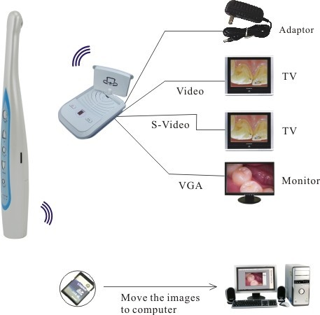 New Dental Equipment of Wireless Dental Intra-Oral Cameras with Mini SD Memory Card